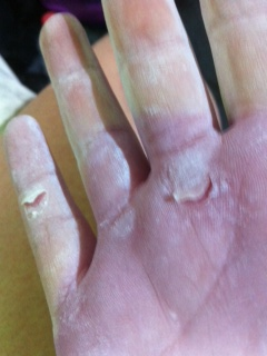 A hand with two deep skin cuts after a hard day training